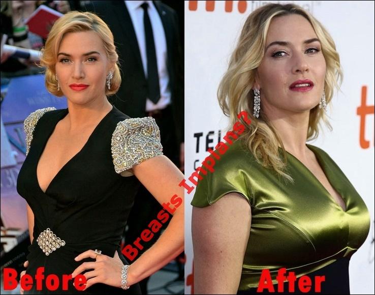 Kate Winslet Plastische Chirurgie vor und nach der Nase Job, Brüste Implantate Fotos