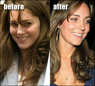 Kate Middleton Nase Job vor und nach der plastischen Chirurgie Fotos