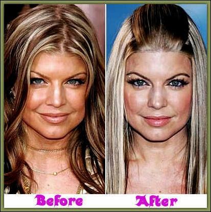 Fergie Plastische Chirurgie vor und nach der Nase Jobs Fotos