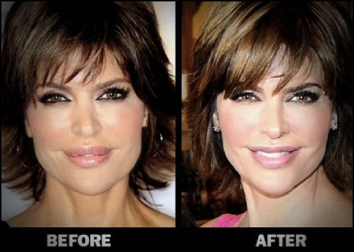 Lisa Rinna Lippen Reduzierung Plastische Chirurgie Bilder