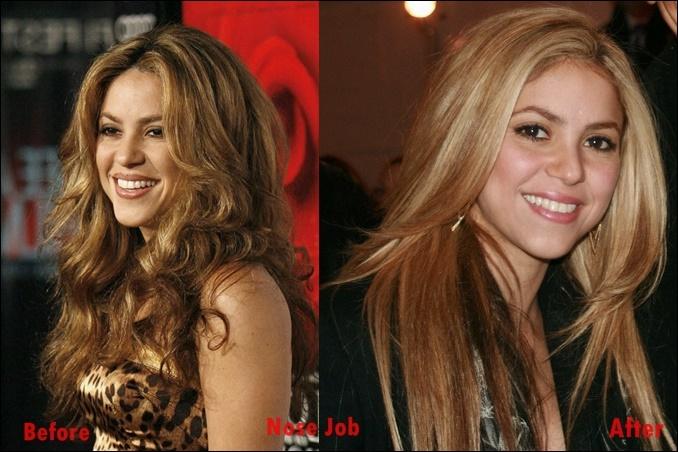 Shakira Nase Job Plastische Chirurgie vor und nach Nasenkorrektur Fotos