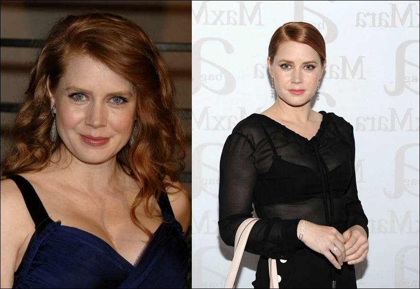 Amy Adams Nase Job vor und nach der Operation Fotos