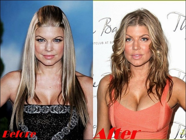 Fergie Brustimplantate Chirurgie vor und nach Boob Job Fotos