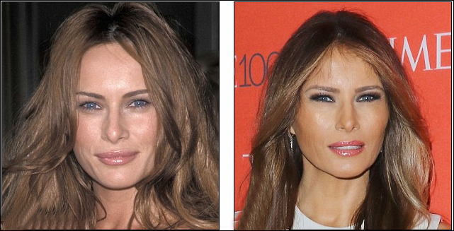 Melania Trump Plastische Chirurgie Cheek Implantate Fotos