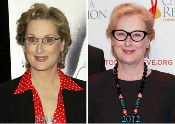 Meryl Streep Plastische Chirurgie Vorher-Nachher Bilder