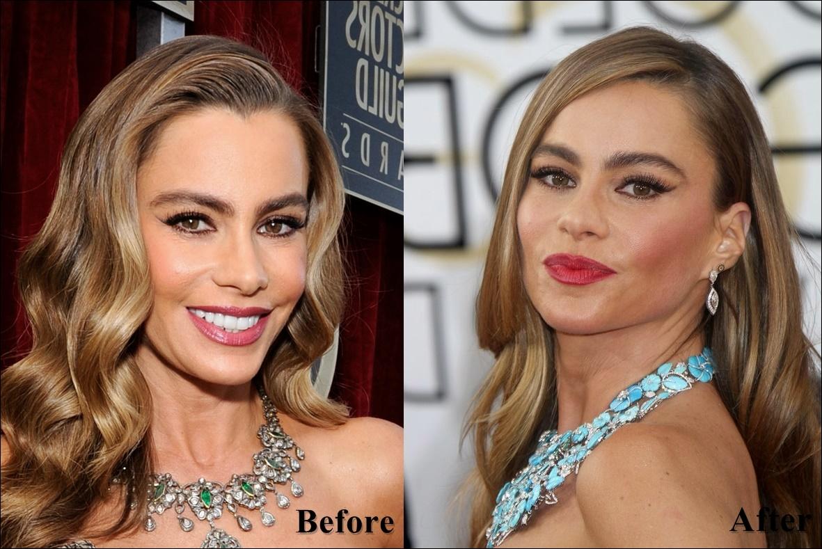 Sofia Vergara Plastische Chirurgie Gesicht vor und nach Fotos