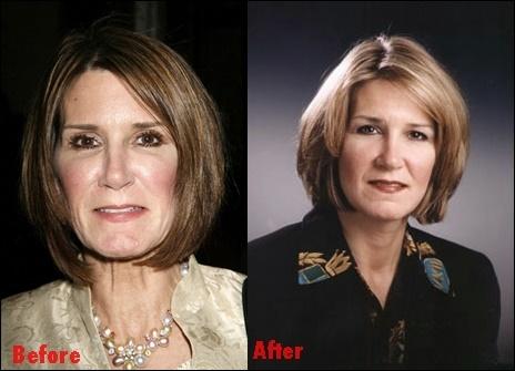 Mary Matalin Plastische Chirurgie vor und nach Fotos