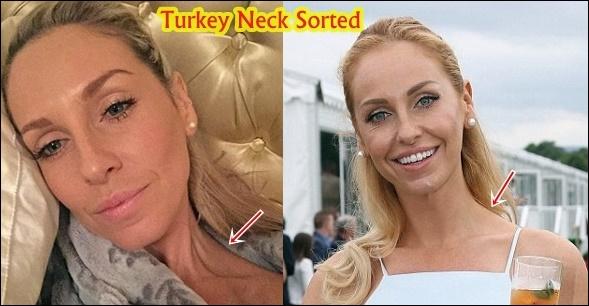 Josie Gibson Plastische Chirurgie vor und nach Kosmetik, Gewichtsverlust Fotos