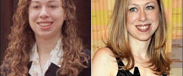 Chelsea Clinton Plastische Chirurgie