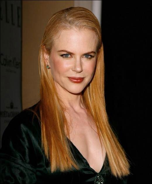 Nicole Kidman plastische Chirurgie für geschwollenes Aussehen