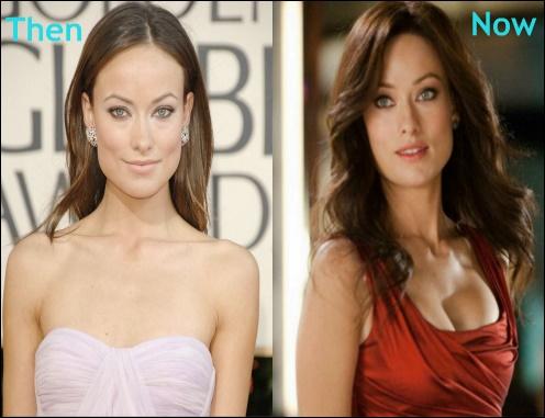 Olivia Wilde Brustimplantate Chirurgie vor und nach der Nase Job Fotos