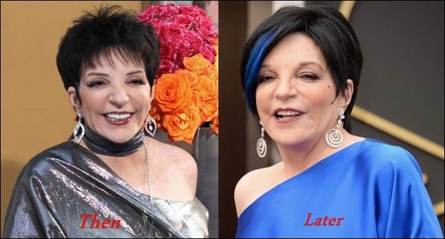 Liza Minnelli Plastische Chirurgie Vorher-Nachher Fotos