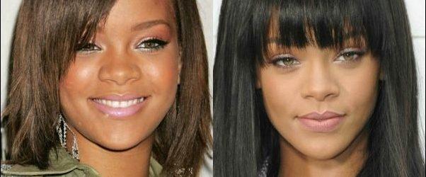 Rihanna Nase Job Plastische Chirurgie vor und nach den Bildern