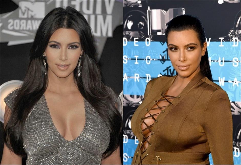 Sterne mit Brustimplantaten Vorher und Nachher Bilder