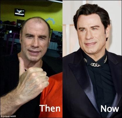 John Travolta Haartransplantation vor und nach Bildern
