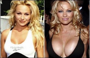Brustimplantate falsche Bilder vorher und nachher