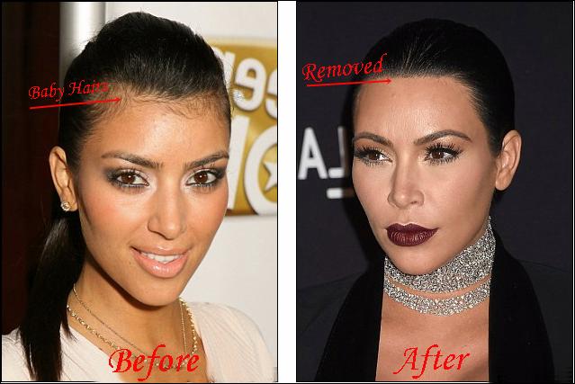 Kim Kardashian Laser-Haarentfernung Vorher-Nachher Bilder