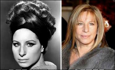 Barbra Streisand Plastische Chirurgie im Alter von 70