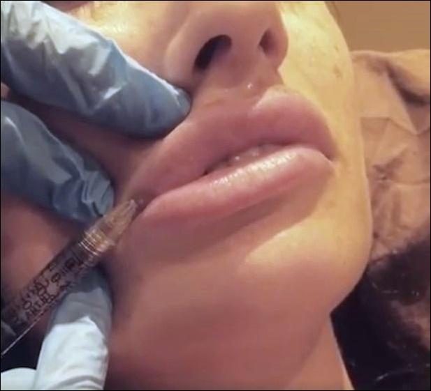 Chantelle Houghton Lippenfüller Plastische Chirurgie vor und nach Fotos