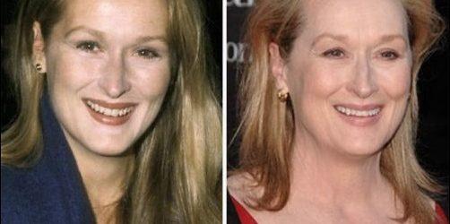 Meryl Streep Plastische Chirurgie vor und nach