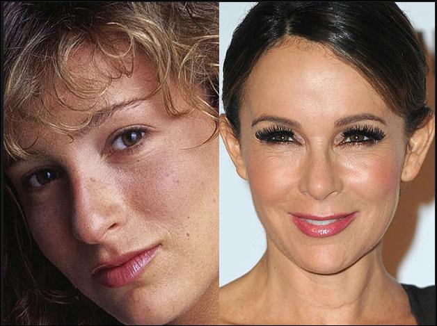 Jennifer Grey Dann und Jetzt Nach Plastische Chirurgie Fotos