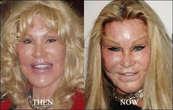 Gut aussehende Promis, die sich selbst mit plastischer Chirurgie zerstört haben