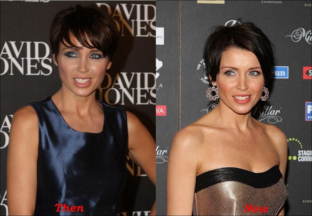 Dannii Minogue Plastische Chirurgie vor und nach Botox Fotos