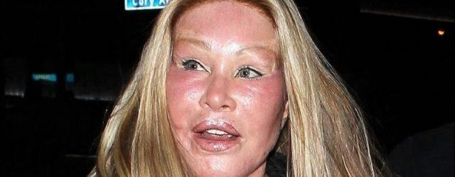 Jocelin Wildstein - Catwoman plastische Chirurgie Katastrophe