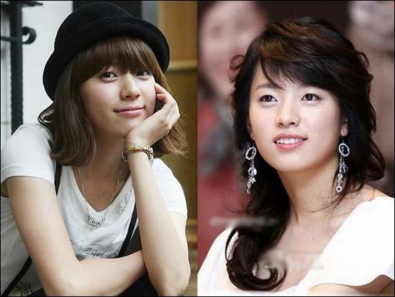 Han Hyo Joo kosmetische plastische Chirurgie vor und nach Bildern