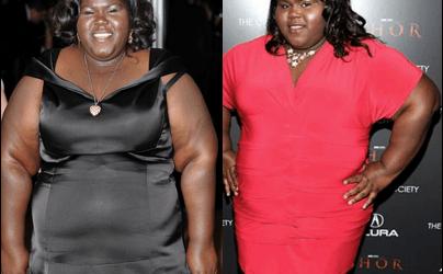 Gabourey Sidibe Plastische Chirurgie vor und nach Fotos