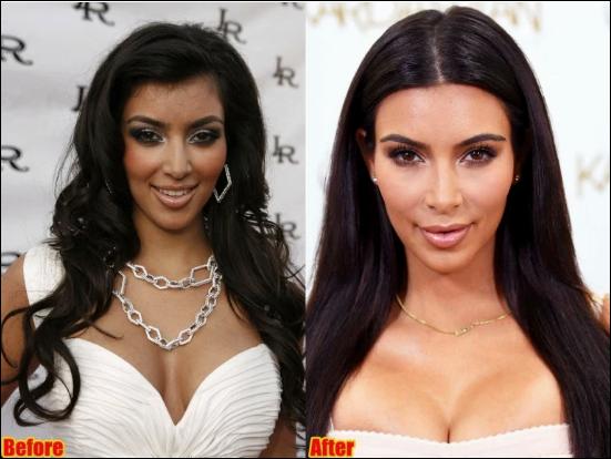 Kim Kardashian Kosmetische Chirurgie Vorher-Nachher Fotos