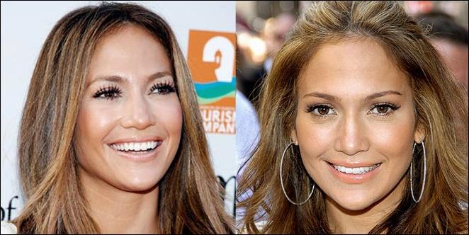 Jennifer Lopez Nase Job vor und nach den Bildern