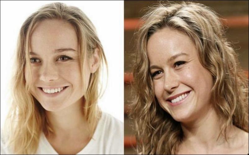 Brie Larson's Nasenkorrektur und plastische Chirurgie