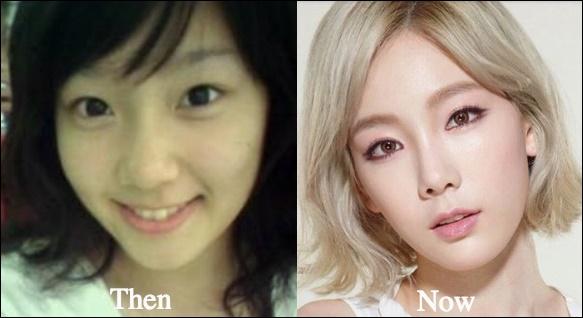 Kim Taeyeon Plastische Chirurgie vor und nach der Nase Job, Augenlid Fotos