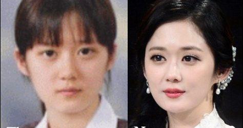 Jang Nara Plastische Chirurgie vor und nach Facelift, Augenlid Fotos