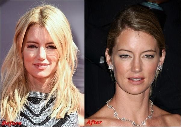 Cynthia Watros Plastische Chirurgie vor und nach Gesicht Fotos