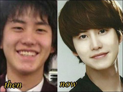 Cho Kyuhyun Plastische Chirurgie vor und nach Augenlid, Nase Job Fotos