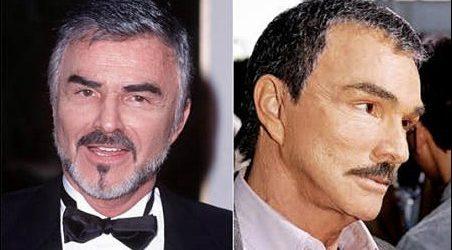 Burt Reynolds Plastische Chirurgie und kosmetische Veränderungen