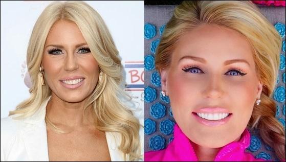 Gretchen Rossi Plastische Chirurgie Gesicht vor und nach der Laserbehandlung