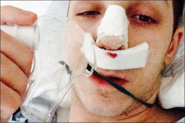Joey Essex Nase Job Plastische Chirurgie vor und nach Fotos
