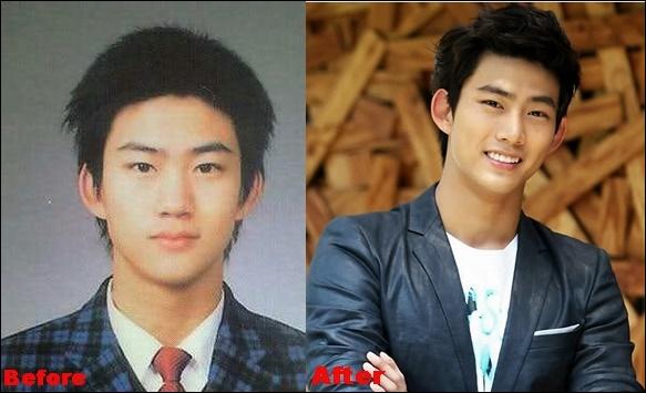 Ok Taecyeon Plastische Chirurgie vor und nach der Nase Job, Augenlid Fotos