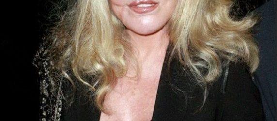 Jocelyn Wildenstein Plastische Chirurgie vor und nach Gesicht Fotos
