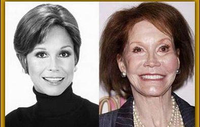 Mary Tyler Moore Plastische Chirurgie falsch gegangen