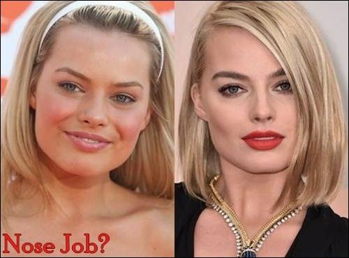 Margot Robbie Plastische Chirurgie vor und nach der Nase Job, Brüste Implantate Fotos