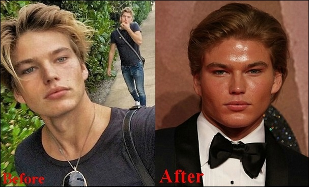 Jordan Barrett Cosmetics Plastische Chirurgie vor und nach Fotos