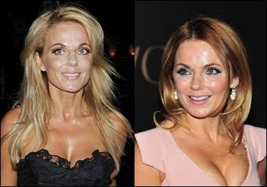 Geri Halliwell Plastische Chirurgie Botox vor und nach Gesicht Fotos