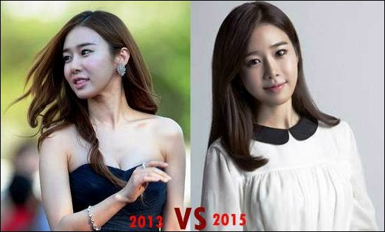 Yoo In Na Plastische Chirurgie vor und nach Fotos, Bilder