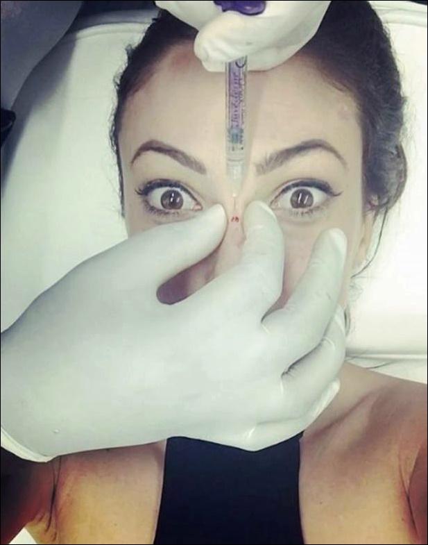 Sophie Gradon Nase Job Plastische Chirurgie vor und nach Instagram