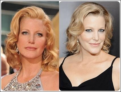 Anna Gunn Plastische Chirurgie vor und nach Botox, Facelift Fotos