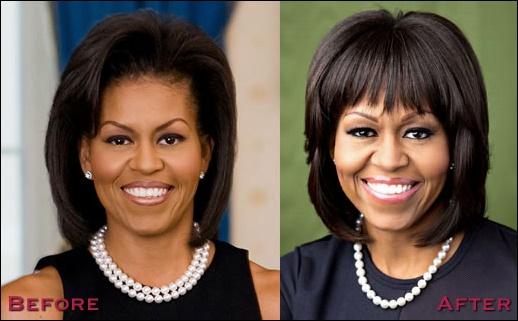 Michelle Obama Plastische Chirurgie vor und nach